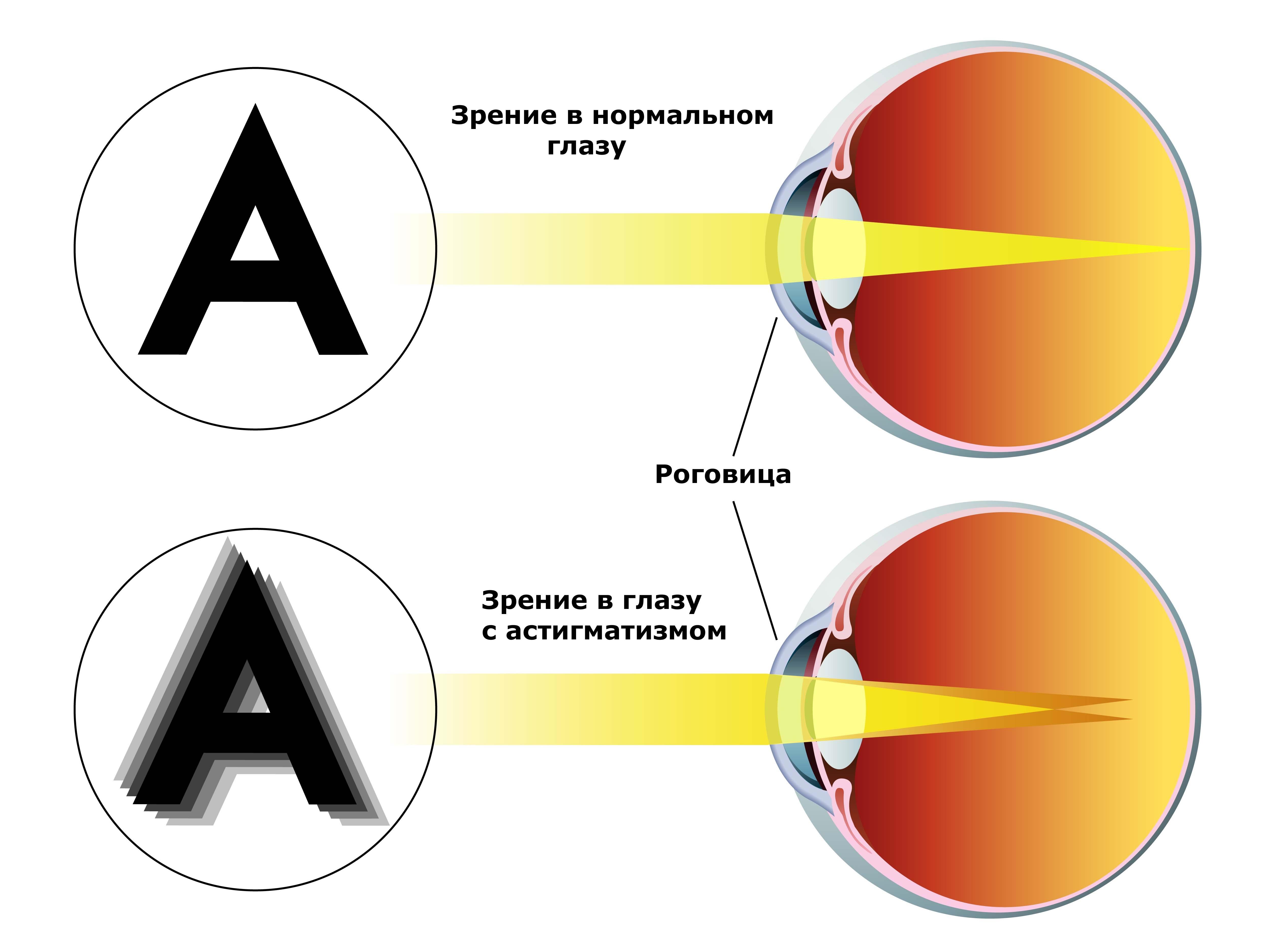 Для улучшения зрения при близорукости