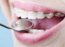 история ортодонтии